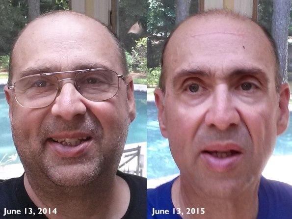 Bob June 2014 vs. June 2015